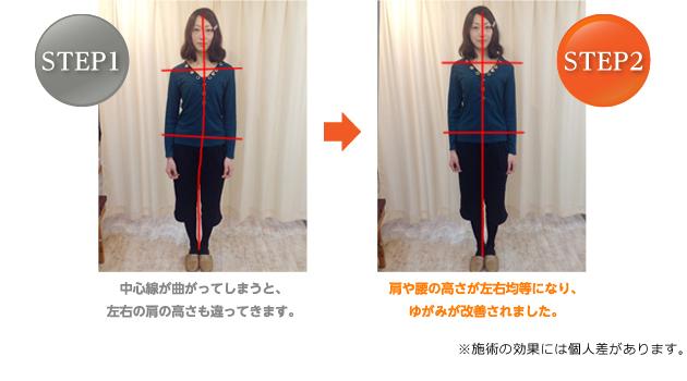 肩や腰の高さが左右均等になり、ゆがみが改善されました。
